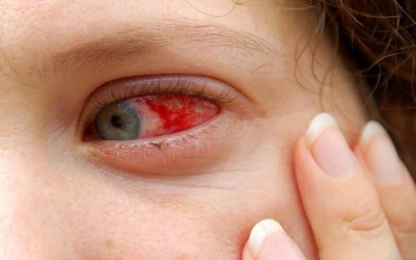 Triệu chứng xuất huyết giác mạc khi nhiễm bệnh