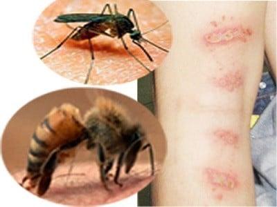 xử lý côn trùng cắn